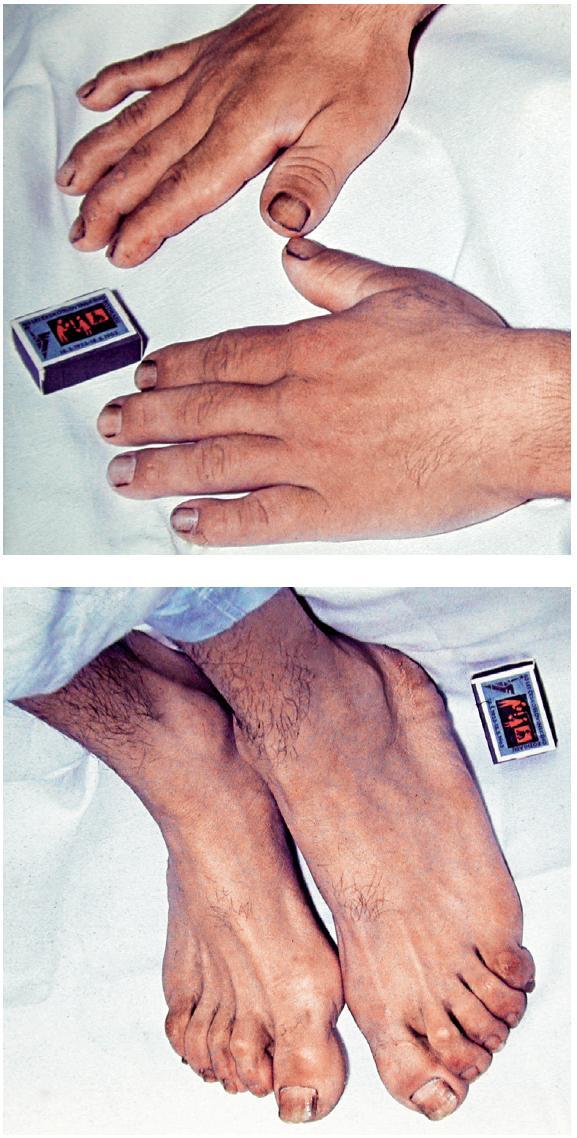 Obr. 1 a, b. Vzhled rukou (a) a nohou (b) pacienta s akromegalií, pacient též na obr. 3 a 6b (foto: archiv Stomatologické kliniky LF UK a FN Hradec Králové)