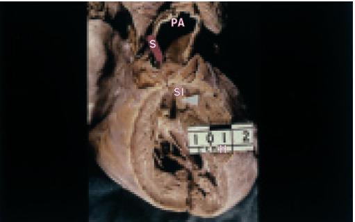 Kritická stenóza (červená šipka) a sekundární infundibulární senóza (bílá šipka) vlivem závažné hypertrofie pravé komory (stěna komory je tlustší než 1 cm).