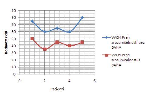 Výsledky slovnej audiometrie v skupine vrodených vývojových chýb bez a s BAHA testerom – prah zrozumiteľnosti.