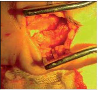 Nález kalcifikace v epineuriu po opakovaných obstřicích steroidy.