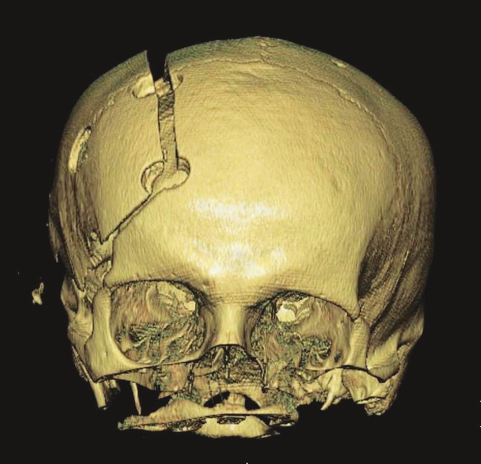 Nadzdvižená kostní ploténka ve stadiu edému mozku Fig. 3. Cerebral edema lifting the bone plate