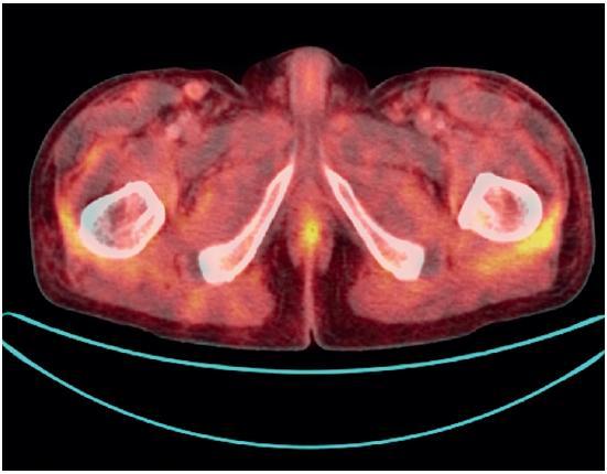 PET-CT vyšetření. Difuzně lehce vyšší konzumpce glukózy v síťovitě zastřeném podkoží na trupu.