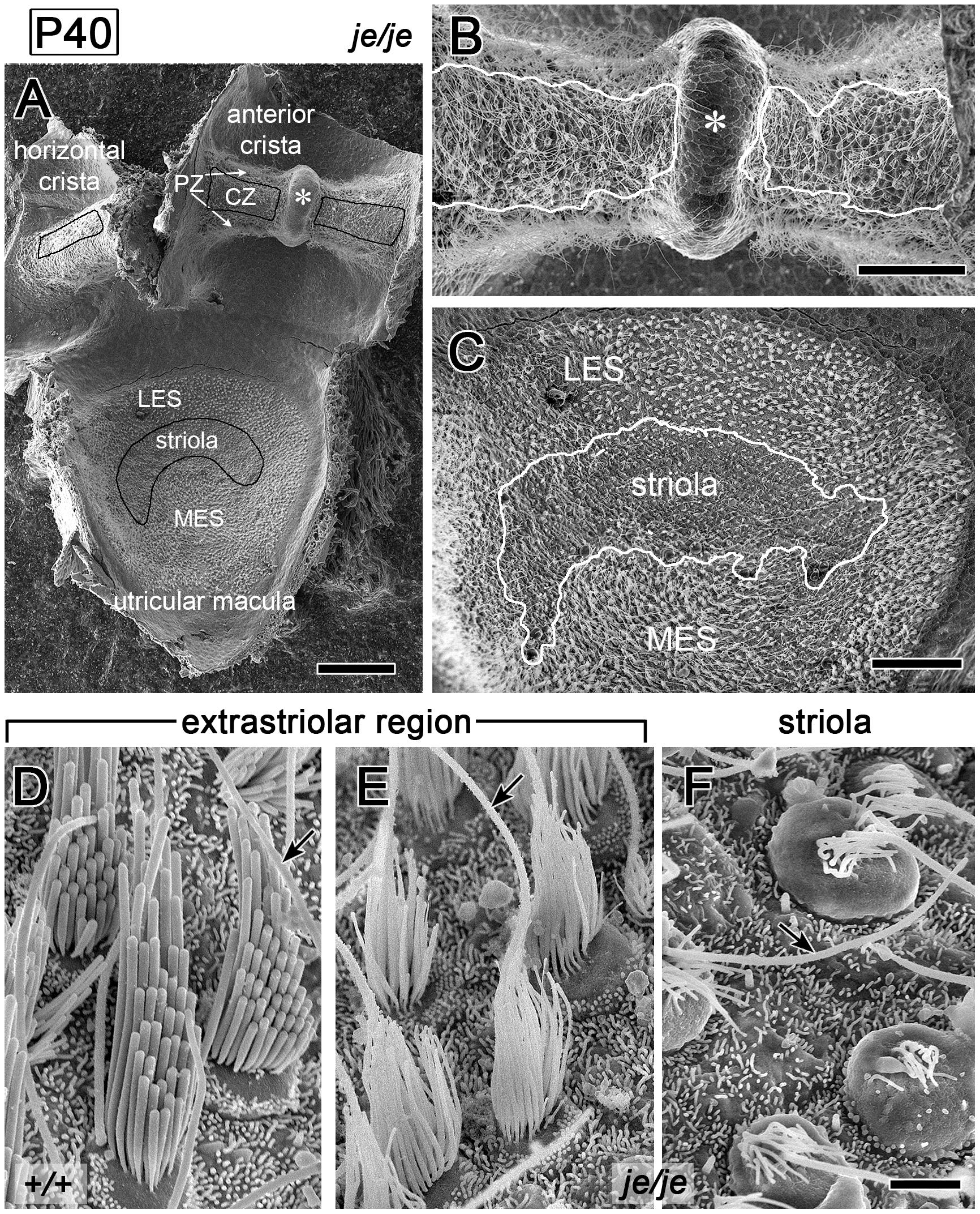 Regional differences in the fate of stereocilia on vestibular hair cells in <i>je/je</i> mice.