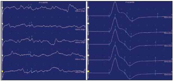 Obr. 1a, b. Ukázka vyšetření MEP nervi ulnaris vpravo. N. ulnaris vpravo (R) – ADM: kortikální odpověď (1) nevybavena, radikulární (2): 13,35 ms/8,4 mV.