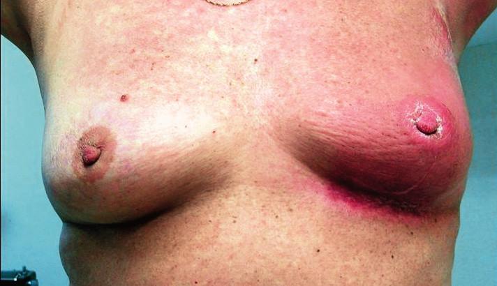 Inflamatorní karcinom
