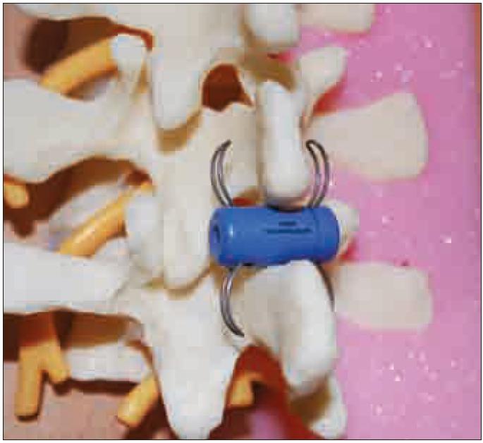 Model bederní páteře s pozicí implantátu In-Space mezi spinózními výběžky.