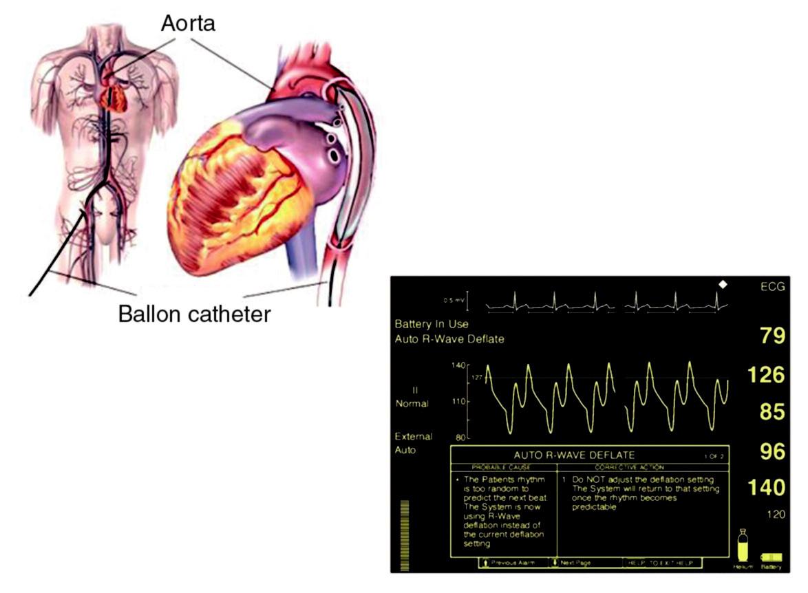Intraaortální balonková kontrapulzace Vlevo – zavedení do descendentní aorty; vpravo – hemodynamický efekt na tlakové křivce z aorty – diastolická augmentace.