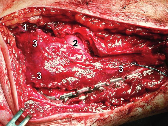 Rozšířený modifikovaný Kocherův přístup – reinzerce m. anconeus: 1 – lig. collaterale lat.,  2 – hlavice radia, 3 – m. anconeus Fig 20: Extended modified Kocher approach – reinsertion of anconeus: 1 – lateral collateral ligament, 2 – radial head, 3 – anconeus