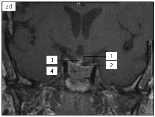 """Obr. 2d. Po operační MR prokazující dostatečnou resekci adenomu vzhledem k jeho tuhosti, 1. chiazma, 2. kraniální porce adenomu/""""pseudopouzdro"""" dostatečně vzdálené od chiazmatu, 3. stopka hypofýzy, 4. v.s. reziduum adenomu (relativně obtížně hodnotitelné vzhledem k tomu, že vyšetření provedeno první pooperační den, další postup u pacienta bude stanoven dle MR tři měsíce po operaci)."""