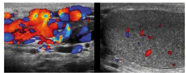 Dopplerovské ultrazvukové vyšetření varlete.