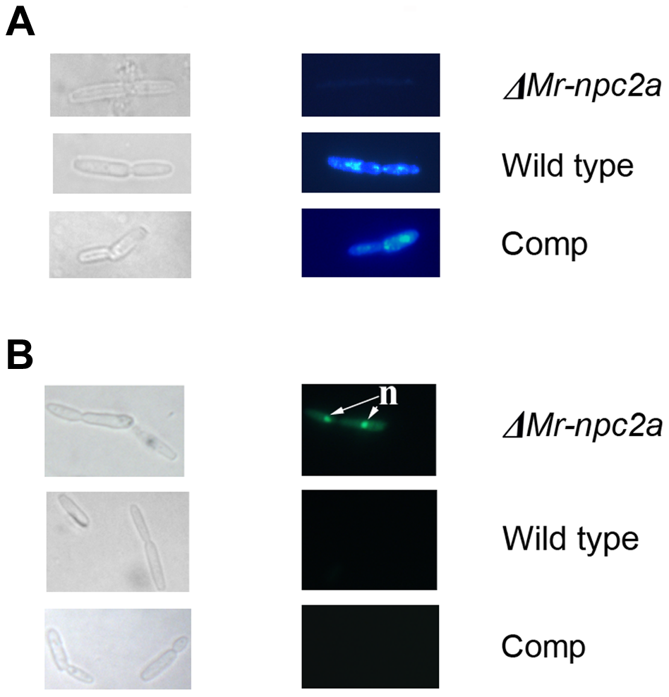 Filipin and sytox green staining of <i>M. robertsii</i> hyphal bodies collected from the hemolymph of living insects.