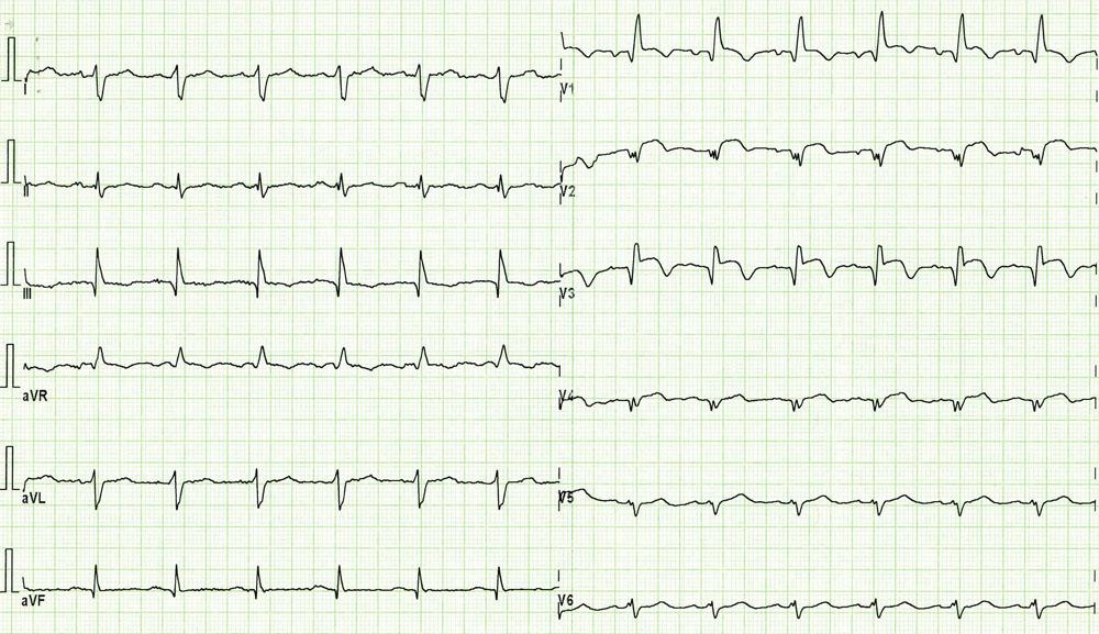 EKG při přijetí pacientky. Blok pravého Tawarova raménka a známky subakutního infarktu myokardu na přední stěně s elevacemi ST segmentu a již vytvořenými Q vlnami ve svodech V<sub>1</sub>– V<sub>5</sub>.
