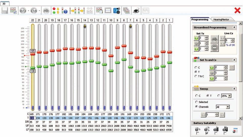 Ukázka nastavovacího prostředí programu Custom Sound 3.2 (fy Cochlear).