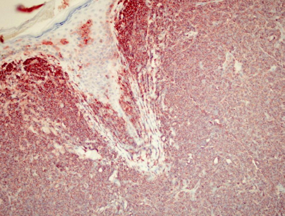 Pozitivita CD56+ v nádorových bunkách kožného infiltrátu (zväčšenie 20x).