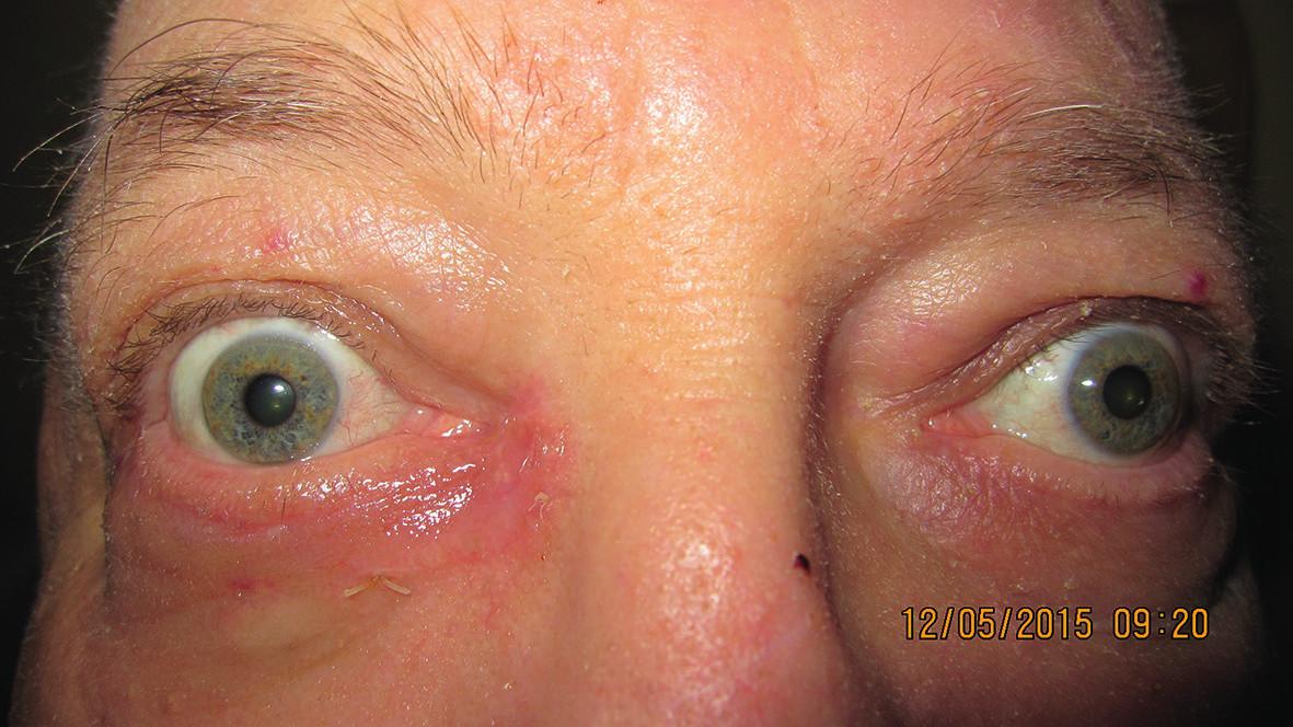 Pacient 3 týždne po excízii a plastike pre bazalióm vnútorného kútika (5/2015)