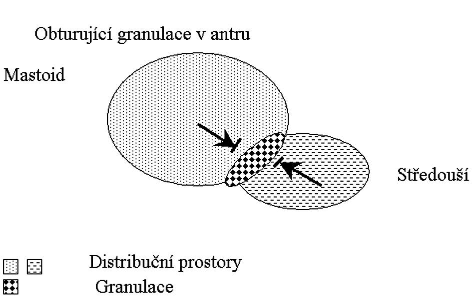 Distribuční prostory v případě obturace v antrum mastoideum.