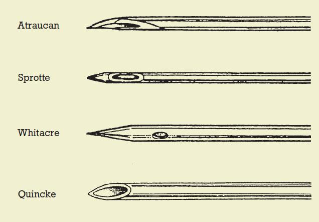 Morfologie hrotů jehel užívaných při subarachnoidální blokádě (SAB).