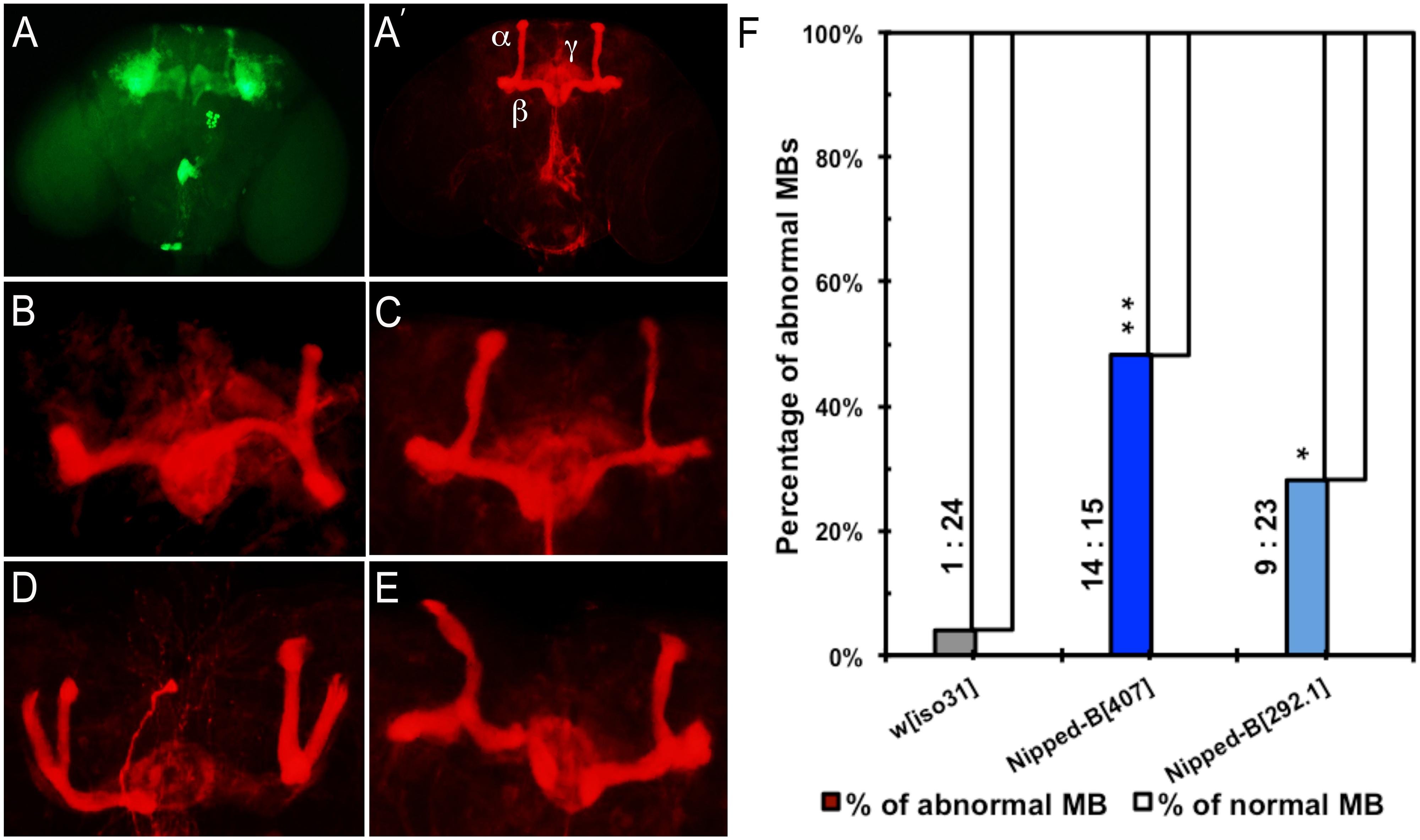 Mushroom body abnormalities seen in <i>Nipped-B</i> heterozygotes.