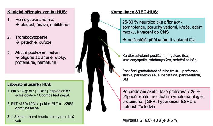 Klinický obraz a laboratorní známky typické formy HUS (STEC-HUS).