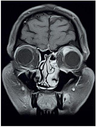 MRI očnic T1 vážený obraz, FSAT, koronární řez, kontrast Dotarem – opacifikace infiltrátu v levé orbitě