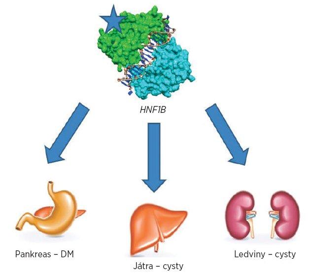 Přehled nejčastějších postižení jednotlivých orgánů při anomáliích v genu HNF1B.