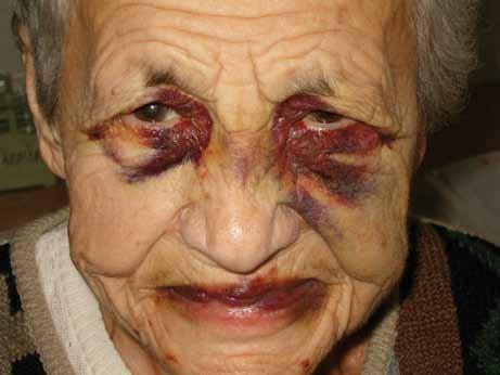 Masivní hematomy v oblasti očních víček u pacientky s AL‑amyloidózou.