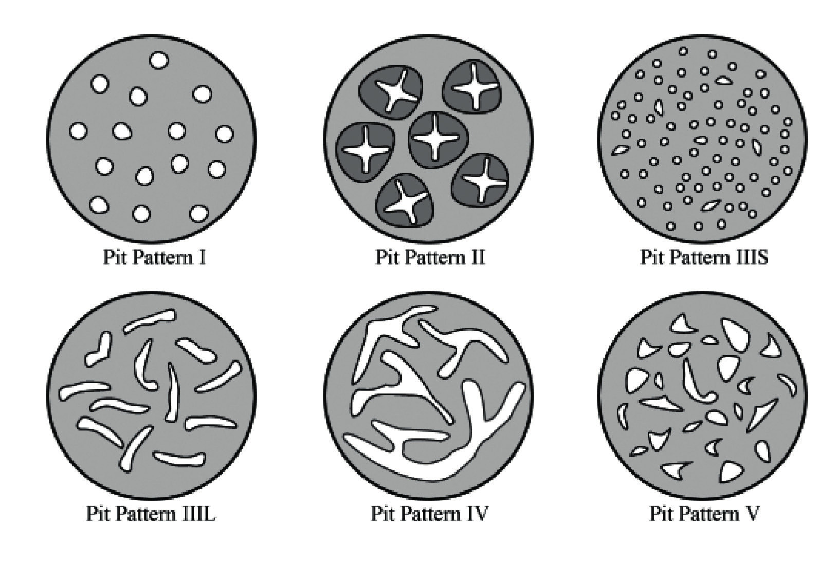 Schematické znázornění původní Kudovy klasifikace
