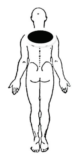 Lokalizácia bolesti u centrálneho symetrického posteriórneho derangementu (McKenzie, May, 2006).