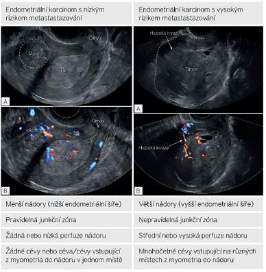 Ultrazvukové sonomorfologické a dopplerovské charakteristiky zhoubného nádoru endometria s nízkým a vysokým rizikem metastázování do lymfatických uzlin