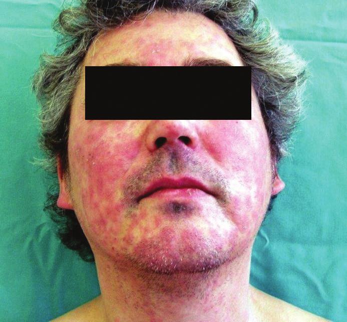 Živě červená splývající ložiska na obličeji a krku, otok a erytém očních víček – airborne dermatitis