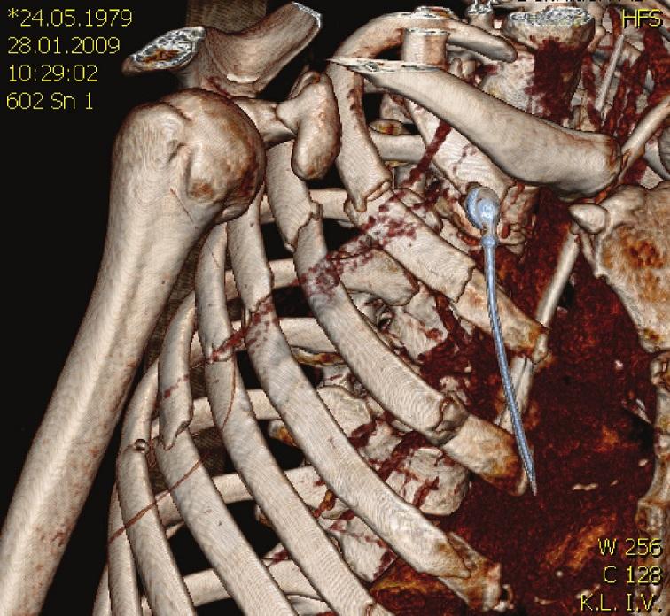 3D CT rekonstrukce u blokové zlomeniny žeber pravé poloviny hrudníku Fig. 3. 3D CT reconstruction of the right-sided block rib fracture