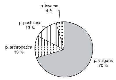 Podiel klinických foriem psoriázy.