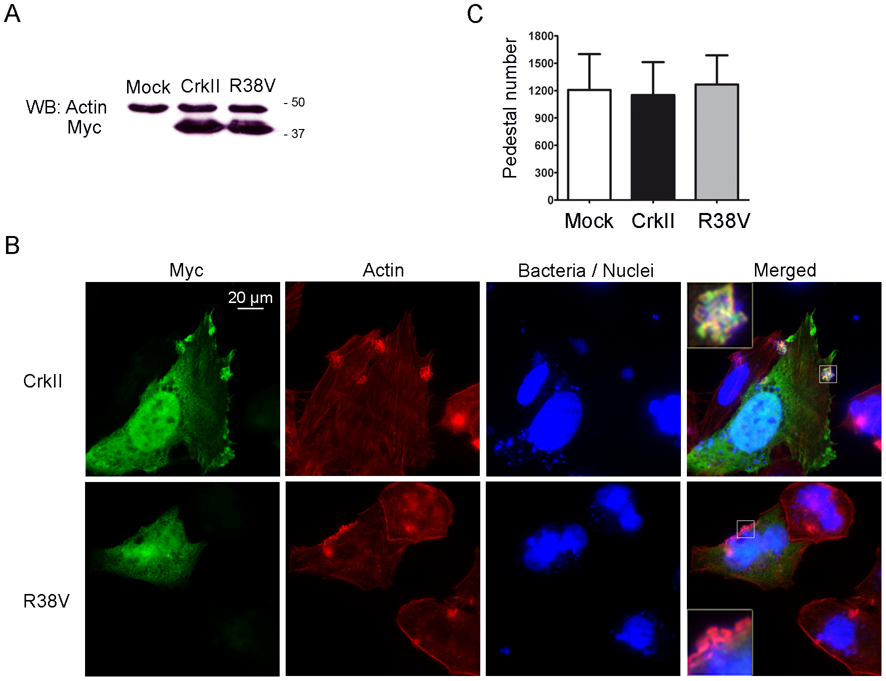 Pedestal formation in HeLa cells expressing a dominant-negative CrkII mutant.