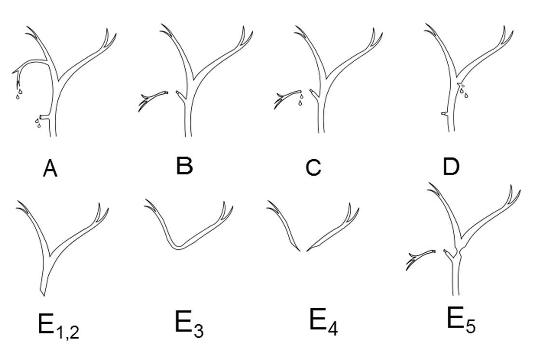 Strasbergova klasifikace poranění žlučových cest a) Leak z ductus cysticus nebo z lůžka žlučníku (tedy ze struktur spojených s ductus choledochus). b) Přetětí pravého aberantního žlučovodu. c) Přetětí pravého aberantního žlučovodu navíc doprovázeno leakem z pahýlu. d) Natnutí extrahepatálních žlučových cest. e<sub>1</sub>) Poranění ductus hepaticus communis s pahýlem delším než 2 cm. e<sub>2</sub>) Poranění ductus hepaticus communis s pahýlem kratším než 2 cm. e<sub>3</sub>) Stenóza v místě soutoku ductus hepaticus dexter a sinister. e<sub>4</sub>) Stenóza nad soutokem ductus hepaticus dexter a sinister. e<sub>5</sub>) Poranění aberantního žlučovodu, může se manifestovat jako stenóza hlavního žlučovodu. Stupně E1-E5 odpovídají předchozí Bismuthově klasifikaci.<em>(Upraveno dle Strasberg SM, Hertl M, Soper NJ: An analysis of the problem of biliary injury during laparoscopic cholecystectomy. Journal of the American College of Surgeons 1995;180:101–12.)</em> Fig. 1: Strasberg's classification of bile duct injuries a) Bile leak from cystic duct or from the liver bed (from structures, which are connected with common bile duct). b) Right aberrant hepatic duct transection. c) Right aberrant hepatic duct transection with bile leak from the aberrant hepatic duct stump. d) Lateral injury to extrahepatic bile ducts e<sub>1</sub>) Low common hepatic duct lesions with a hepatic duct stump greater than 2 cm e<sub>2</sub>) Proximal common hepatic duct lesions with a hepatic duct stump less than 2 cm e<sub>3</sub>) Stricture at the level of the left and right hepatic duct confluence e<sub>4</sub>) Stricture above the level of the left and right hepatic duct confluence e<sub>5</sub>) Right aberrant hepatic duct injury concomitant with a common hepatic duct stricture. Types E1-E5 correspond to the Bismuth's classification. <em>(Modified according to Strasberg S.M, Hertl M, Soper NJ. An analysis of the problem of biliary injury during laparoscopic cholecystectomy. Journal of the Ameri