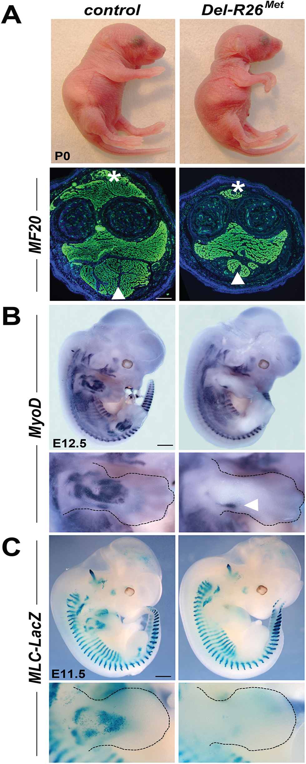 Ubiquitously excess wild-type Met in developing embryos results into hyperflexed forelimbs.