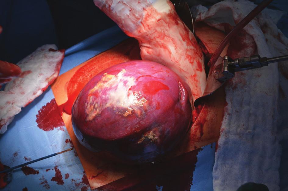 Peroperační foto sleziny během splenektomie Fig. 5: Perioperative photo of the spleen during splenectomy
