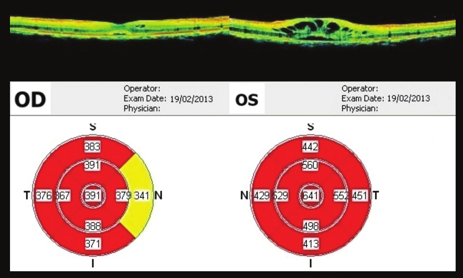 OCT makul OPL 12 týdnů po prvním vyšetření Výrazné zlepšení nálezu, na OP ve fovee 391 μm, OL 641 μm