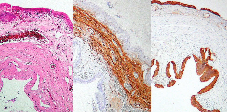 Histologický nález – multicysta, vľavo normálne farbenie, v strede zhrubnutá svalovina, vpravo epitel Fig. 8. Histological preparation – multicyst: normal staining on the left, thick muscle layer in the middle, epithelium on the right