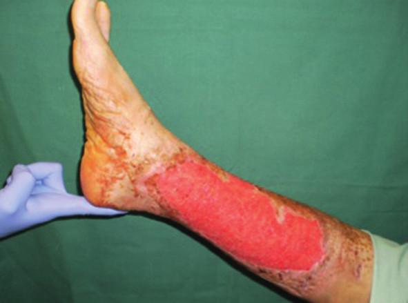 Pacient č. 3 − chronický kožní defekt po débridement a VAC péči trvající 6 dnů Fig. 1: Patient No. 3 − chronic wound after debridement and 6 days of VAC therapy