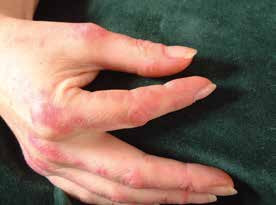 Tzv. prsty mechanika a zároveň Gottronovy skvrny na dorzální straně zejména metakarpofalangeálních kloubů rukou