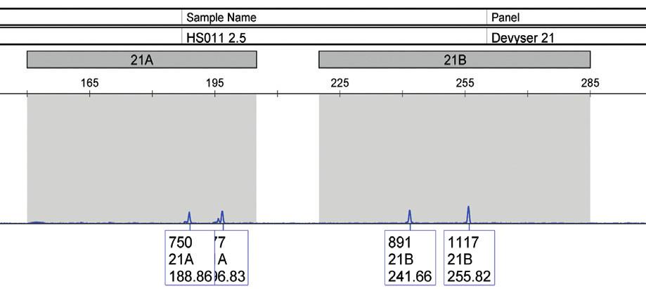 Analýza fetálnej DNA izolovanej z plazmy matky s potvrdenou trizómiou 21 u plodu (vzorka 9). Vzorku nie je možné vyhodnotiť, signál je na úrovni pozadia