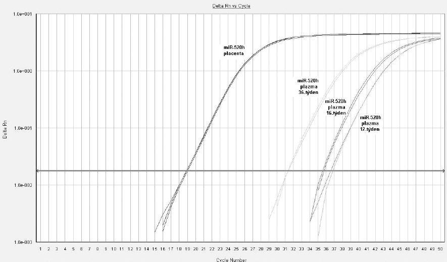 Detekce mikroRNA ve fetální části placenty a v mateřské cirkulaci u těhotenství s fyziologickým průběhem, miR-520h (12., 16. a 36. týden gravidity)