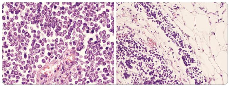 Kompaktní nádorové ložisko složené z malých bazofi lních buněk s vysokým mitotickým indexem (vlevo, světelná mikroskopie, HE, x 400) a invazí do lymfatických cév (vpravo, světelná mikroskopie, HE, x 200).