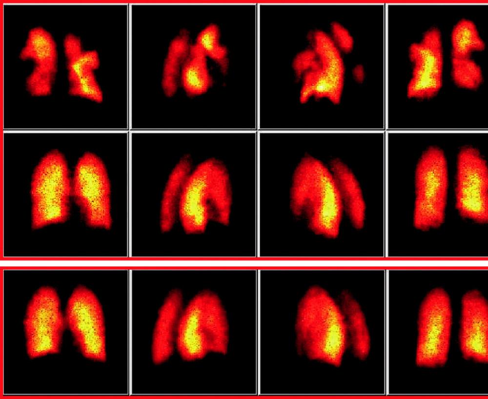 Perfuzní scintigrafie plic s rozvojem postembolizačních reziduí. V první řadě scintigramů jsou patrné klínovité defekty v obou plicních křídlech, svědčící pro oboustrannou plicní embolizaci. Ve 2. řadě kontrolních scintigramů provedených za 3 týdny při antikoagulační terapii je patrné oboustranné zlepšení s nálezem oboustranných rezidui v dolních lalocích plic, které přetrvávají zejména vpravo i na 3. řadě scintigramů provedených za dalších 6 týdnů.