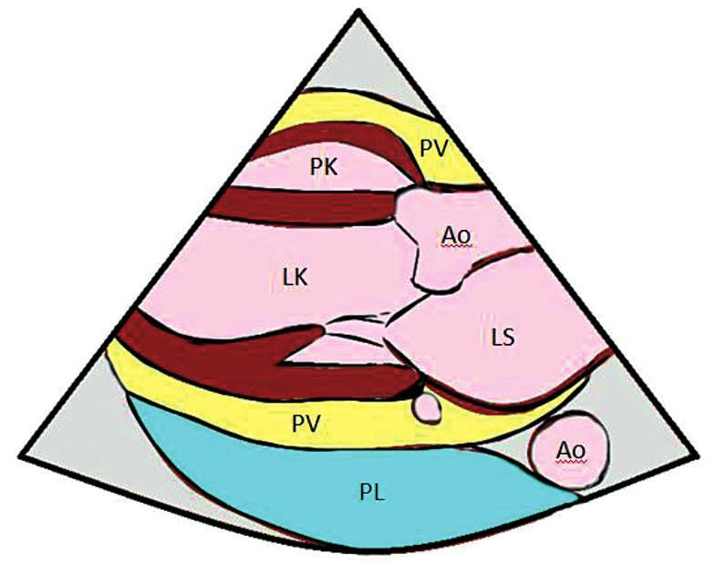 PLAX – parasternální projekce na dlouhou osu – odlišení pleurálního a perikardiálního výpotku PV – perikardiální výpotek, PK – pravá komora, LK – levá komora, Ao – aorta, LS – levá síň, PL – pleurální výpotek