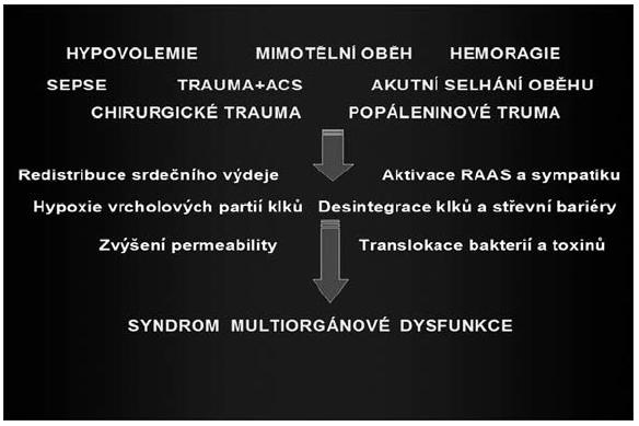 Obr. 3. Patofyziologické mechanismy střevní hypoperfuze ACS – Abdominální kompartment syndrom
