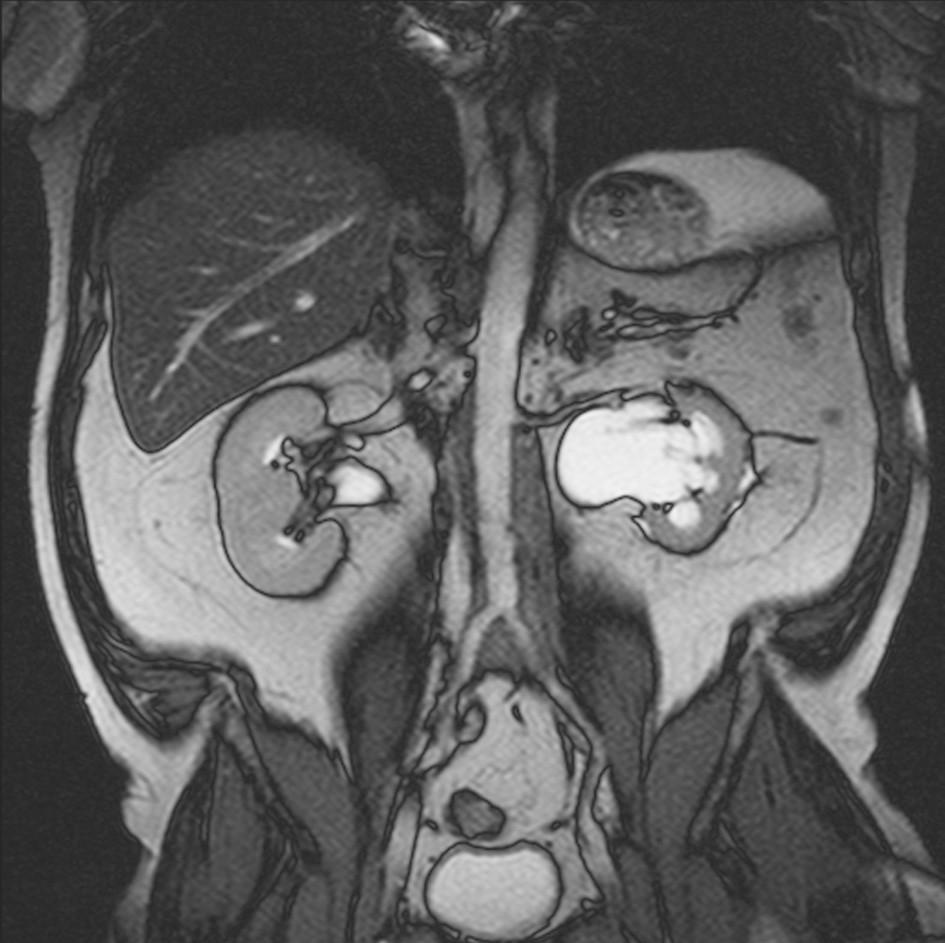 MRI vyšetření provedené 12 měsíců po zahájení terapie tamoxifenem prokazuje regresi rozsahu retroperitoneální fibrotické tkáně. Současně prokazuje ústup dilatace dutého systému obou ledvin a obou ureterů.