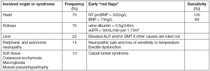 Warning signs suggestive of systemic AL amyloidosis [36]