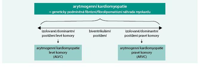 Schéma. Fenotypické varianty arytmogenní kardiomyopatie