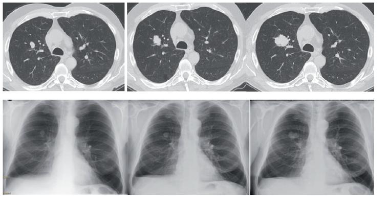 CT a RTG vývoj meta infiltrace v průběhu léčby nivolumabem s postupnou progresí, CT snímky s odstupem vždy po 3 měsících s odpovídajícím skiagramem hrudníku